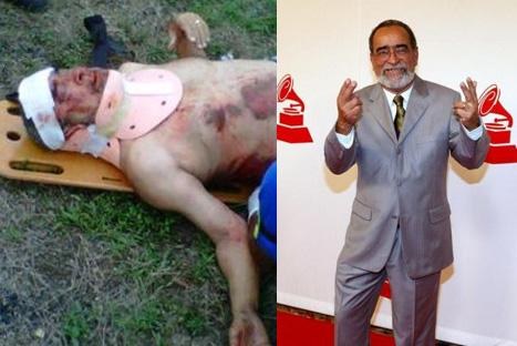 Andy Montañez sufrió accidente de tránsito en Colombia