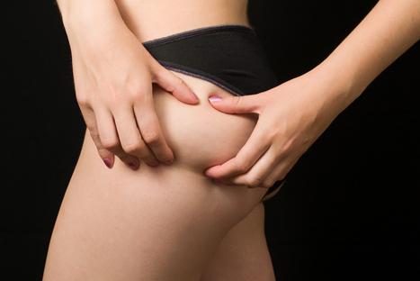 ¿Qué hacer contra la celulitis?