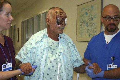 Revelan condición médica de la Víctima del ataque del 'Caníbal de Miami'