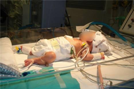 Realizan por primera vez operación del corazón a un bebé