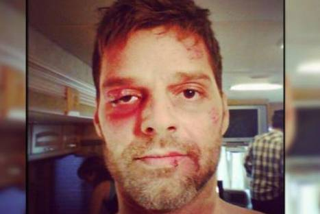 Ricky Martin sorprender a sus fans al aparecer con rostro golpeado en Instagram