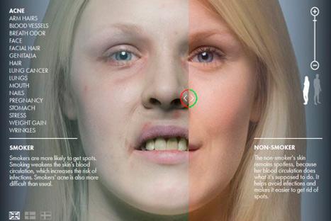 Impactante: página web muestra crudamente cuáles son los efectos del tabaco