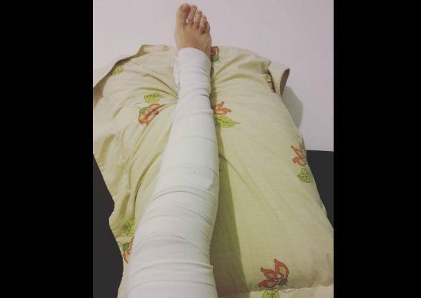 Georgette Cárdenas sufre terrible accidente en su pierna derecha