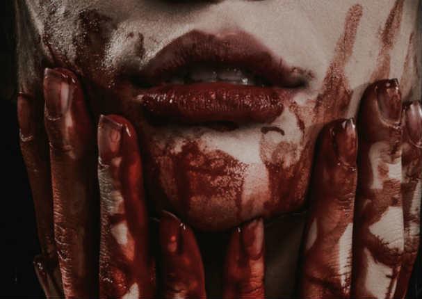 Mujer suda sangre por las manos y cara sin tener lesiones en la piel
