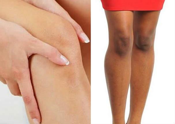 Este es el secreto para aclarar las rodillas y los codos ¡Muy efectivo!