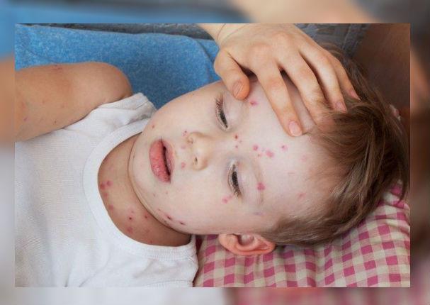 Padres: ¿Cómo evitar una fuerte infección si tu hijo tiene varicela? (VIDEO)