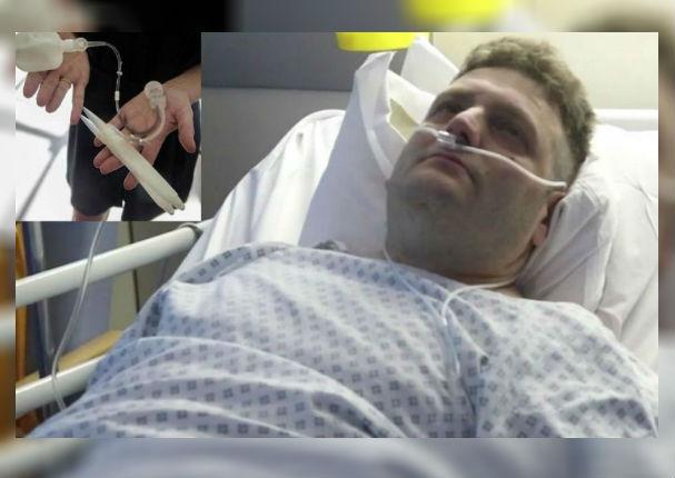 Le implantan miembro viril, pero su primera noche íntima lo llevó al hospital (VIDEO)
