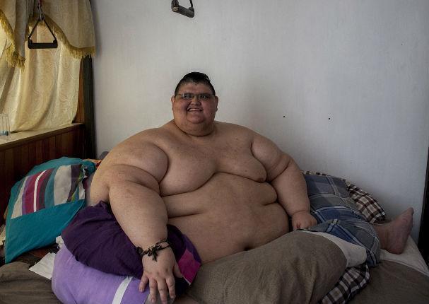 El hombre más gordo del mundo bajó 300 kilos y luce así (FOTO)