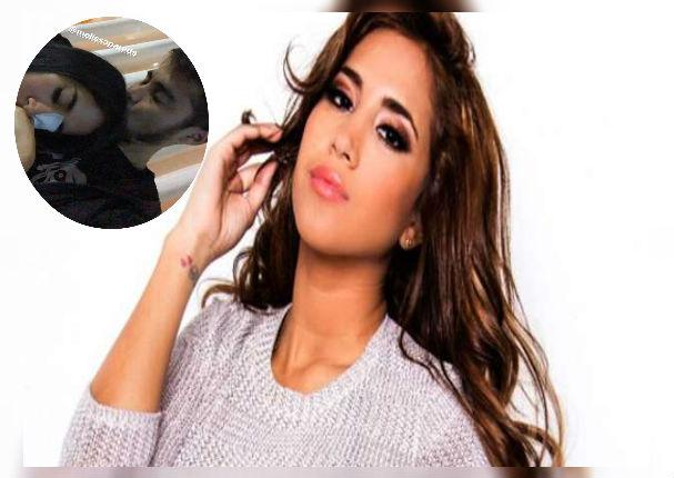 Melissa Paredes reaparece en las redes tras sufrir fuerte accidente en el rostro