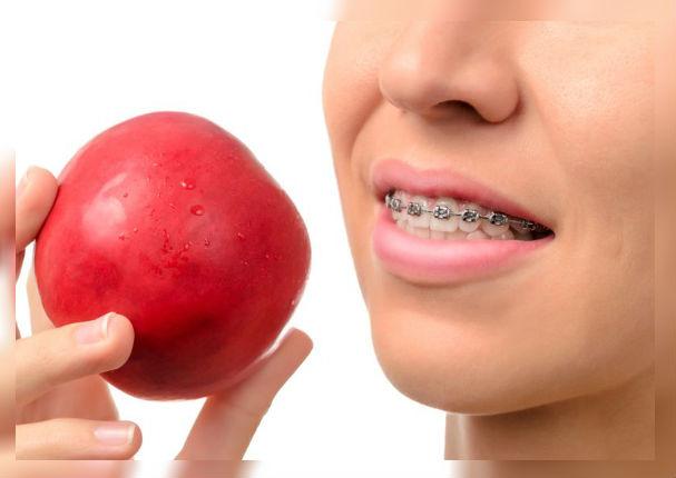 Alimentos perjudiciales que dañan tu tratamiento de ortodoncia