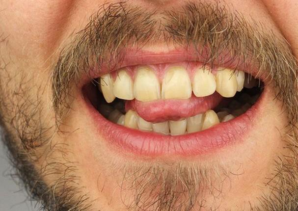 Hombre corta su lengua para detener el avance del coronavirus